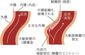 2.大動脈瘤とは | 大動脈瘤の治...